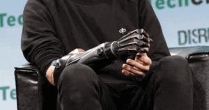 Открытая рука бионики